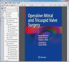 Operative Mitral and Tricuspid Valve Surgery(二尖瓣和三尖瓣手术)