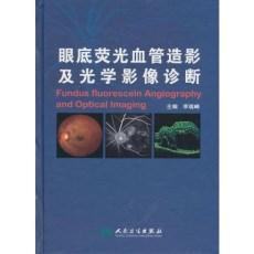 眼底荧光血管造影及光学影像诊断_李瑞峰主编_2010年(彩图)