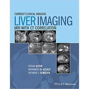 Liver Imaging  MRI with CT Correlation(肝MRI与CT相关影像学)
